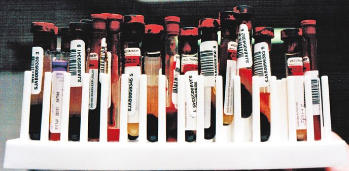 dog blood samples