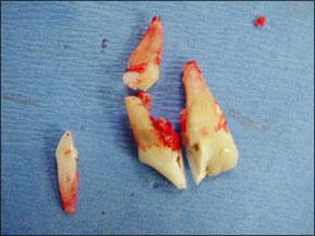 Canine Tooth Surgical Extraction